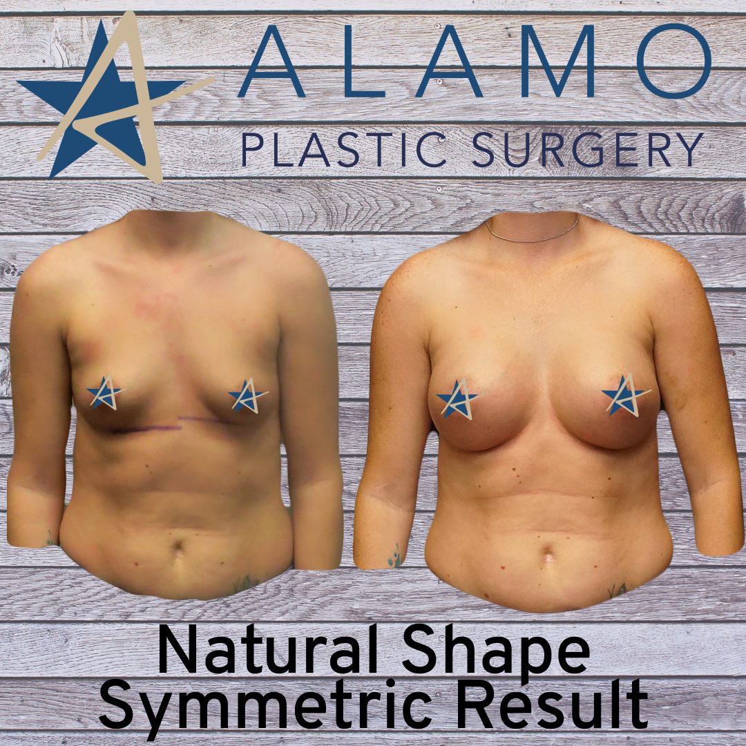 Breast Augmentation San Antonio TX - Natural Shapy Symmetric Result.png