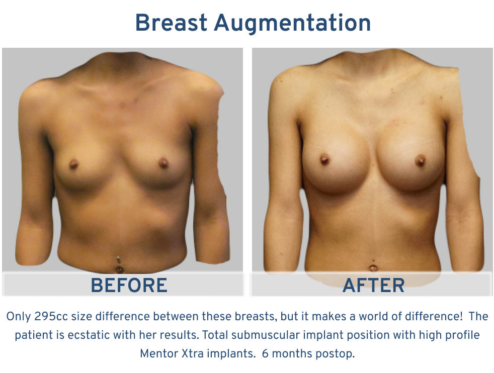Breast Augmentation 295 cc implants.png