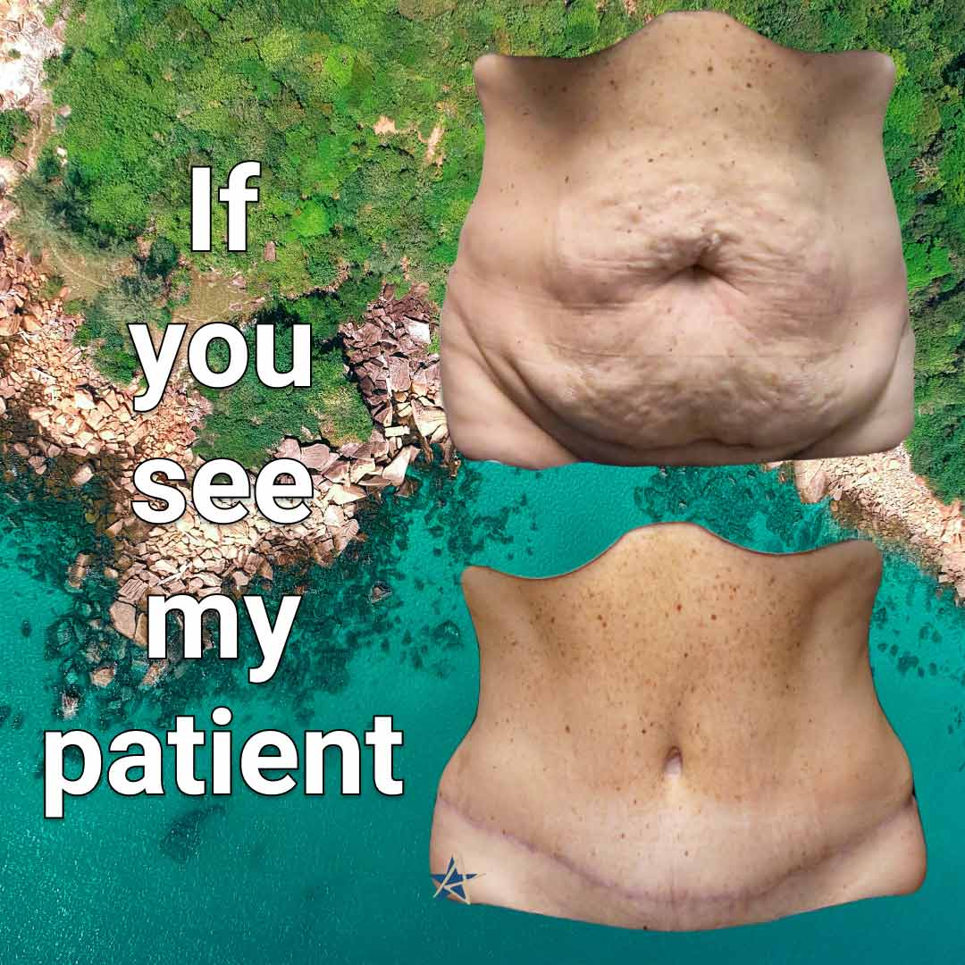 Alamo-Plastic-Surgery-San-Antonio-Tummy-Tuck-Hawaii-Patient-v1
