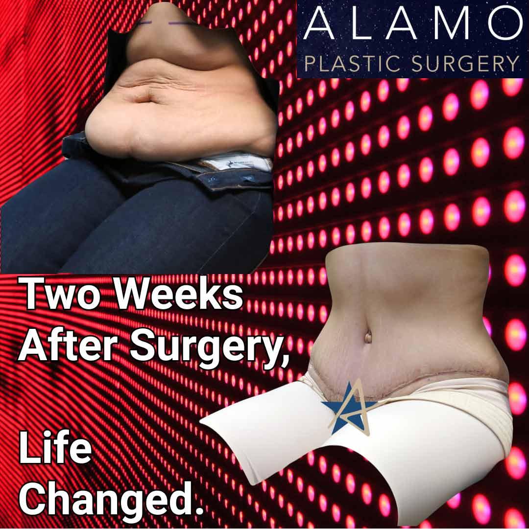 Tummy-Tuck-2-weeks-after-IG-Post.jpeg