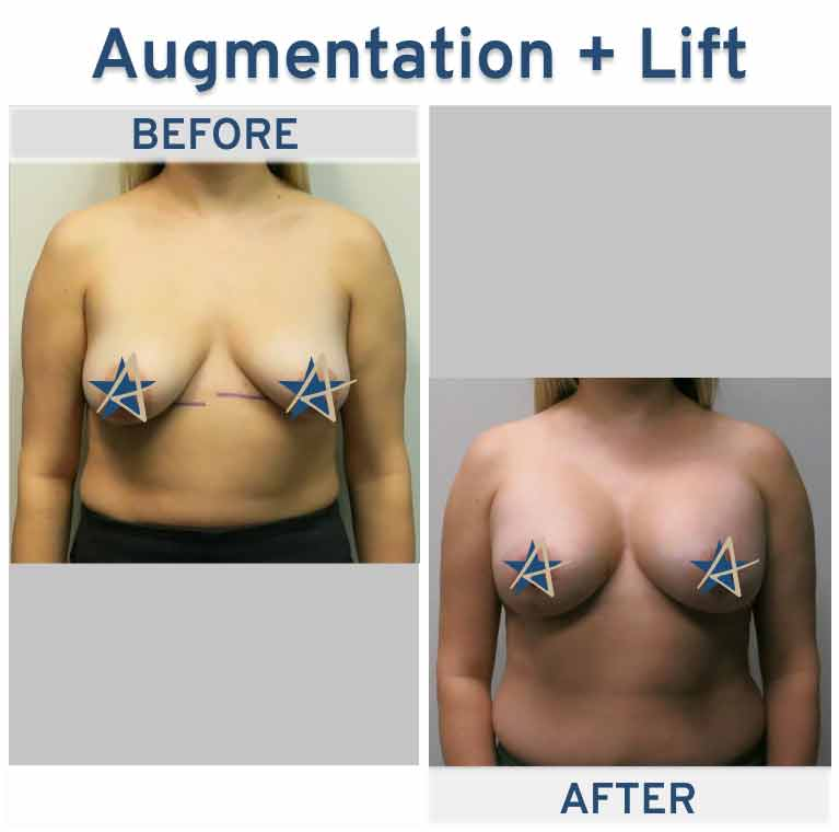 Breast-Augmentation-with-Lift