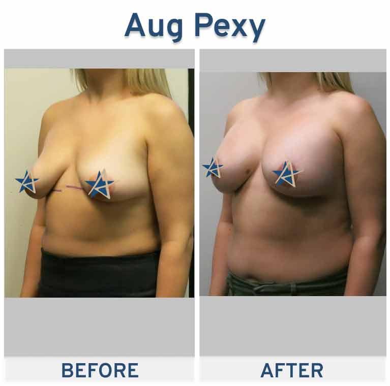 Breast-Augmentation-Pexy-from-Side.jpeg