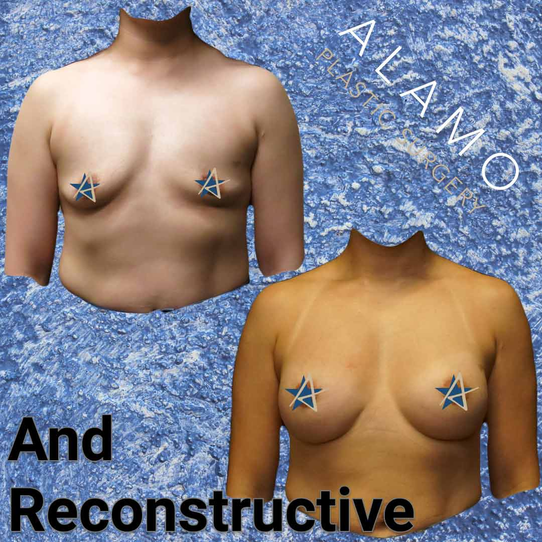 Breast-Reconstruction-and-Augmentation.jpeg