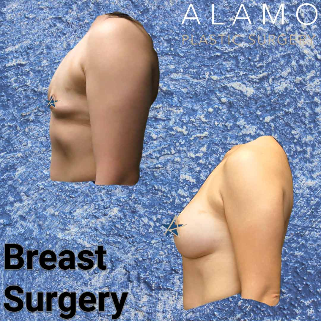 Breast-Reconstruction-with-Breast-Augmentation-v1.jpeg