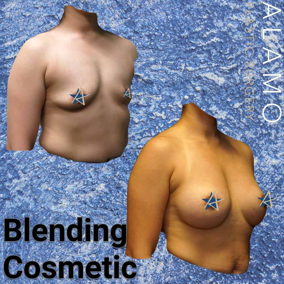 Breast-Reconstruction-and-Breast-Augmentation-v2.jpeg