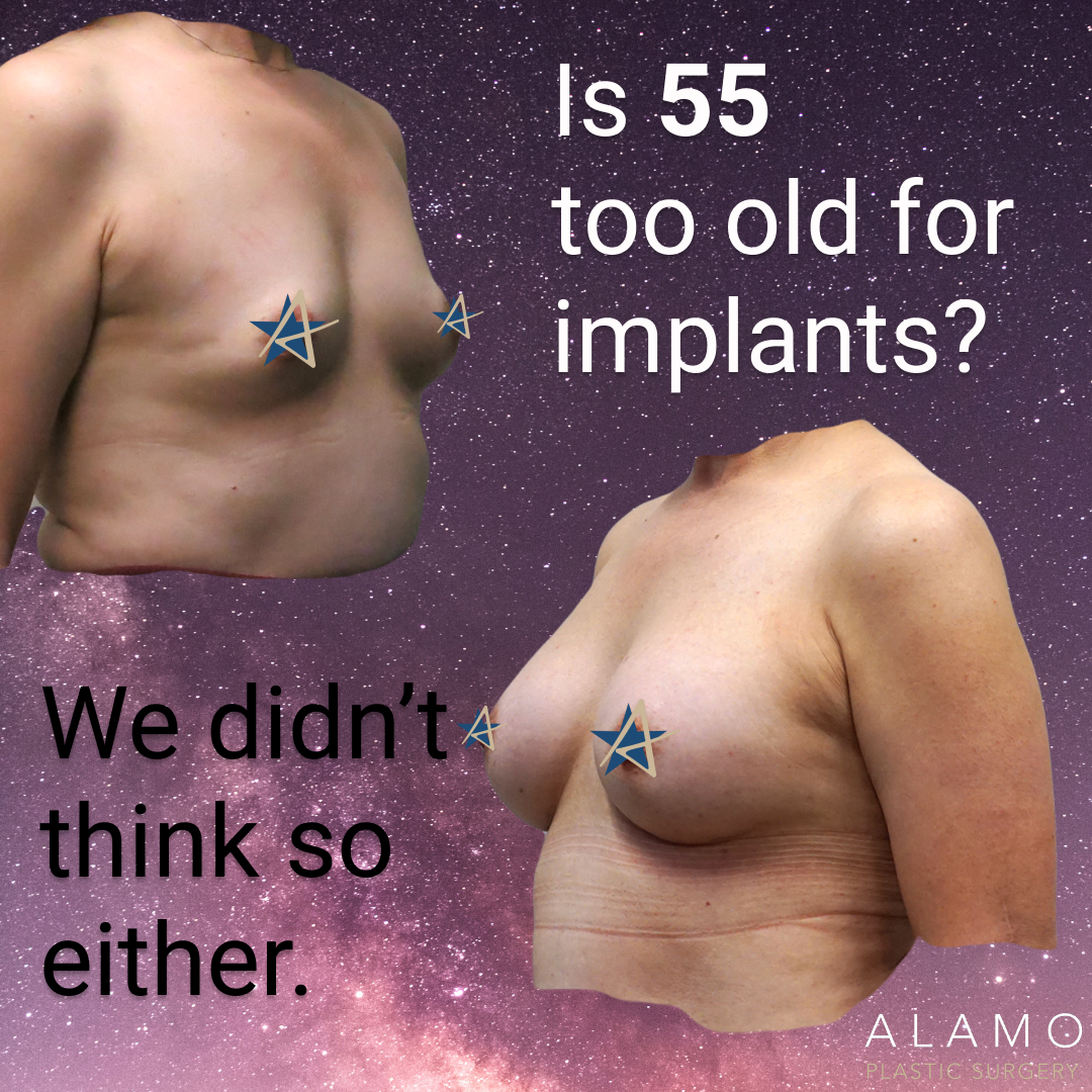 Is 55 too old for implants side