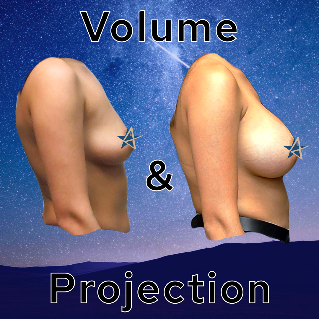 Volume and Projection Breast Augmentation