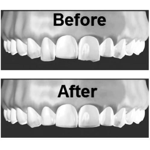 teeth whitening shade guide