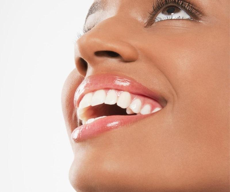 teeth whitening smile
