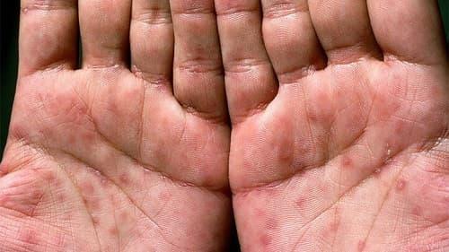 Bệnh giang mai ở lòng bàn tay