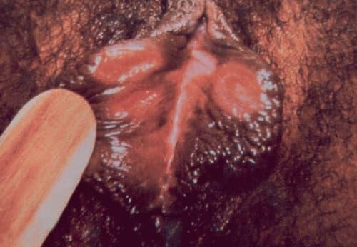 Điều trị bệnh giang mai ở âm đạo nữ giới