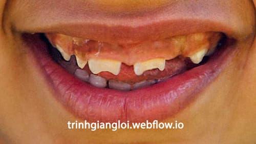 Dấu hiệu răng bất thường khi bị giang mai bẩm sinh
