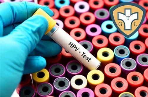 Các phương pháp xét nghiệm HPV chính xác hiện nay