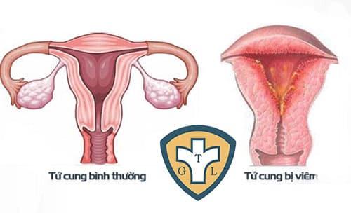 Viêm nội mạc tử cung là bệnh lý thường gặp ở nữ giới sau sinh hoặc sau khi bị sảy thai