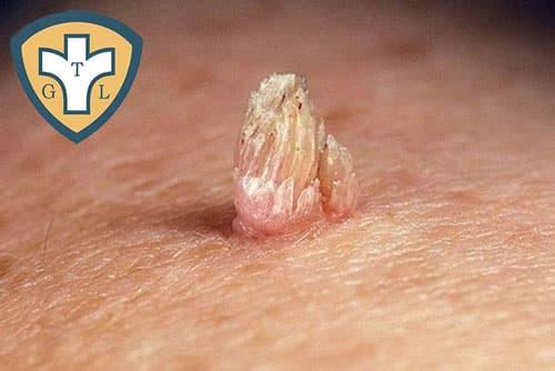 Bệnh sùi mào gà: Nguyên nhân, triệu chứng và cách chữa trị