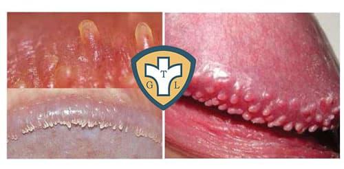 Triệu chứng của bệnh sùi mào gà ở cả nam và nữ giới