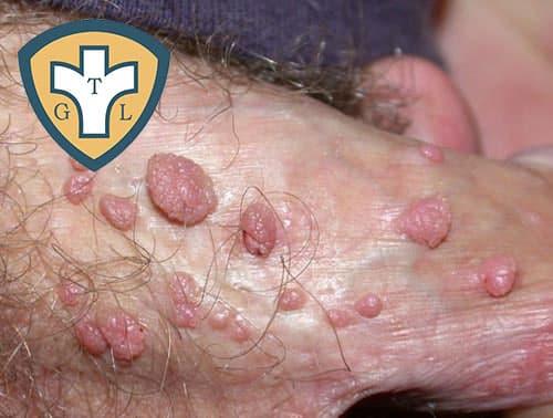 Tác hại mà bệnh sùi mào gà gây ra là gì?