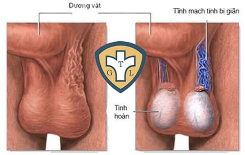 Tĩnh mạch thừng tinh nằm ở vị trí nào?