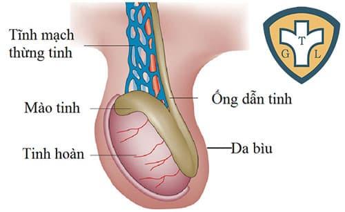 Giãn tĩnh mạch thừng tinh ở mức độ khá nặng