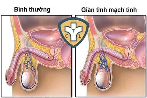 Giãn tĩnh mạch thừng tinh ở mức độ nhẹ nên đi khám không?