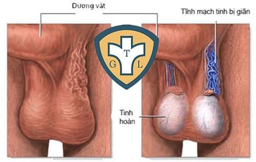 Giãn tĩnh mạch thừng tinh: Nguyên nhân, dấu hiệu và điều trị