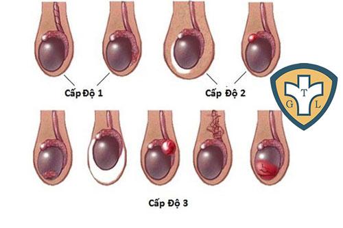 Giãn tĩnh mạch thừng tinh có mấy cấp độ? Phân loại