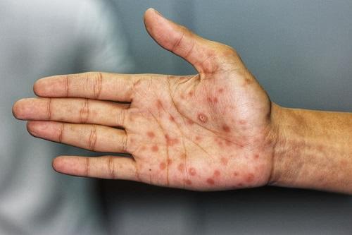 Bệnh giang mai giai đoạn 2 ở lòng bàn tay