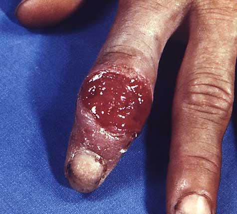 triệu chứng bệnh giang mai