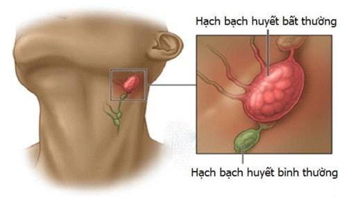 Nổi hạch ở cổ dưới cằm bên phải và trái đau có nguy hiểm không?