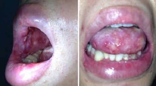 Bệnh lậu ở miệng nam giới là sao dấu hiệu triệu chứng 1