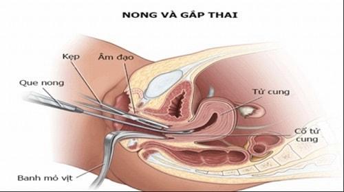 Cách phá thai an toàn hiệu quả tốt nhất không biến chứng 7