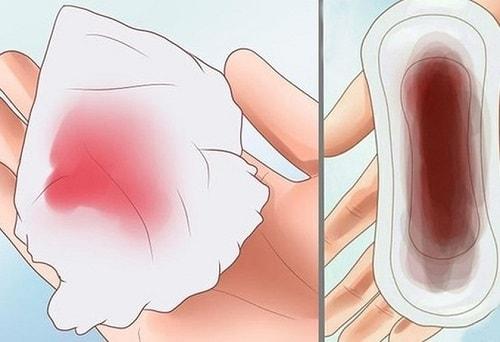 Nhận biết và phòng tránh 10 bệnh phụ khoa nguy hiểm dễ gặp 12