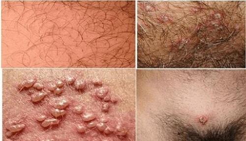 10 Bệnh xã hội nguy hiểm thường gặp triệu chứng và cách chữa 9