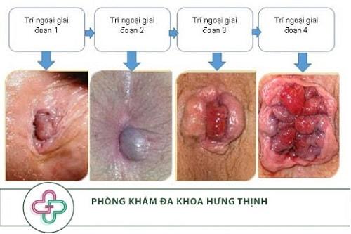 Trĩ ngoại là bệnh gì những cách điều trị bệnh trĩ ngoại 1