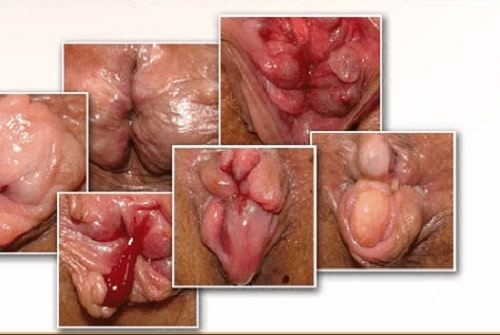 Trĩ ngoại là bệnh gì những cách điều trị bệnh trĩ ngoại 3