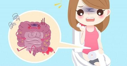 Trĩ ngoại là bệnh gì những cách điều trị bệnh trĩ ngoại 4