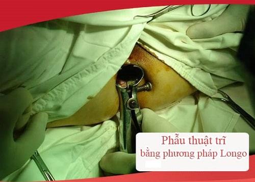 Cắt trĩ là gì quy trình cắt trĩ an toàn review kinh nghiệm đi cắt trĩ 3
