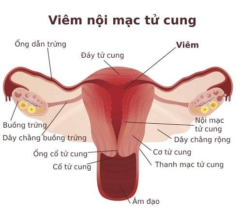 Viêm lộ tuyến cổ tử cung là gì nguyên nhân triệu chứng các cấp độ 10