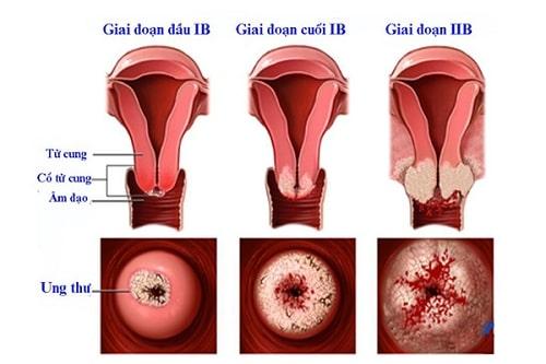 Viêm lộ tuyến cổ tử cung là gì nguyên nhân triệu chứng các cấp độ 12