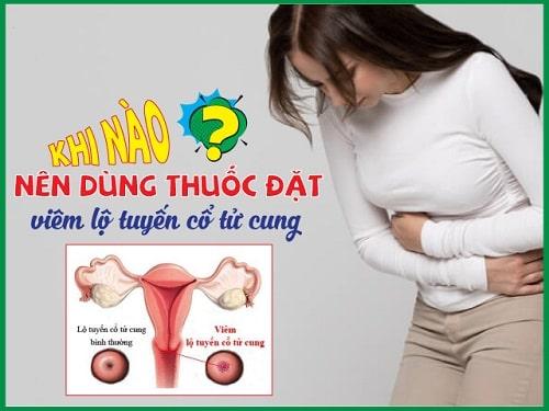 Viêm lộ tuyến cổ tử cung là gì nguyên nhân triệu chứng các cấp độ 14