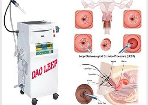 Cách chữa viêm lộ tuyến cổ tử cung hiệu quả tốt nhất 9