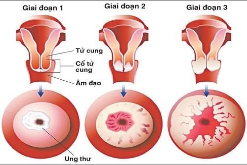 Cách chữa viêm lộ tuyến cổ tử cung hiệu quả tốt nhất 4