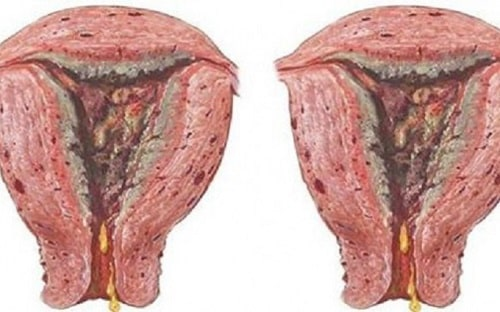 Cách chữa [điều trị] bệnh viêm âm đạo hiệu quả tốt nhất 4