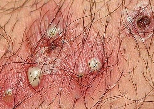 Nổi mụn ở vùng kín do viêm nang lông