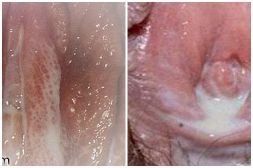 Khí hư có mùi hôi thối là bệnh gì nguyên nhân cách chữa 8