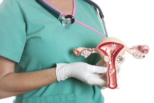 Viêm phần phụ là gì triệu chứng và cách chữa hiệu quả nhất 12