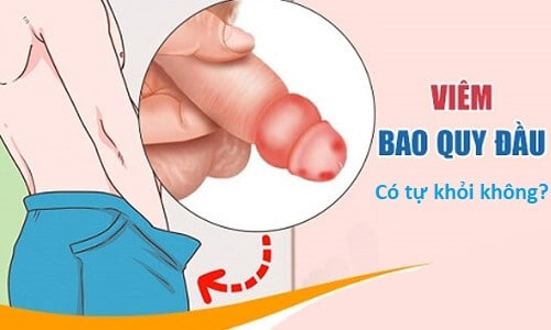 Viêm bao quy đầu nguyên nhân triệu chứng và cách điều trị 7