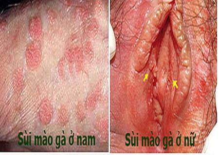 Các loại thuốc chữa bệnh sùi mào gà an toàn hiệu quả 2
