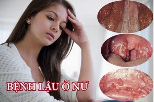 Vùng kín có mùi hôi khắm phải làm sao nguyên nhân cách chữa 8