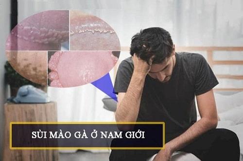 Sùi mào gà ở nam giới nguyên nhân dấu hiệu cách trị triệt để 4